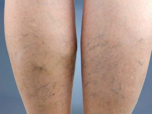 VasCare Top 5: How to Prevent Spider Veins