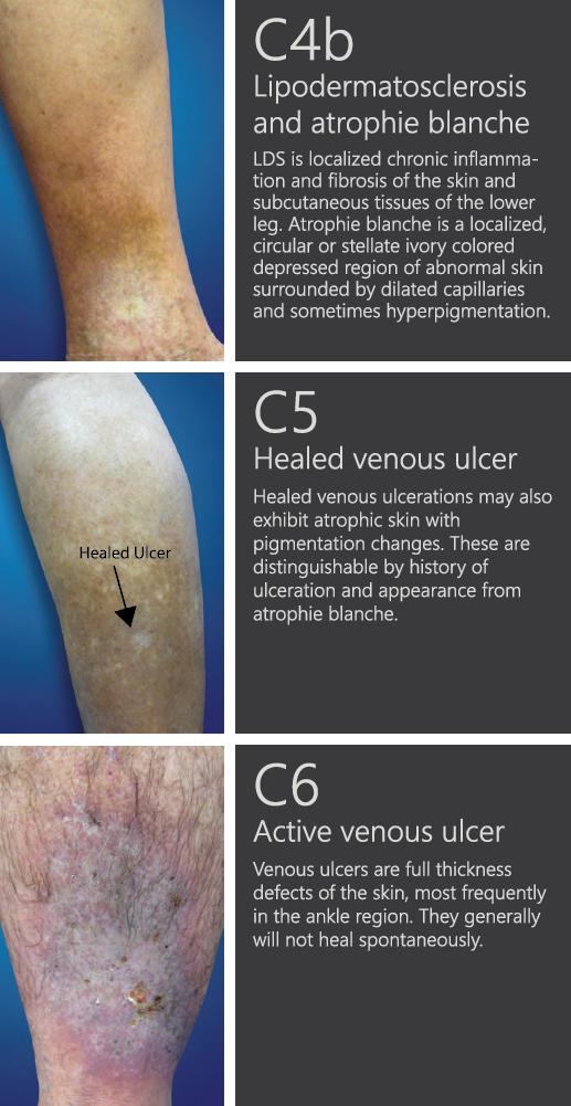 Varicose Cream Varicose (Varicosete) - Tratament