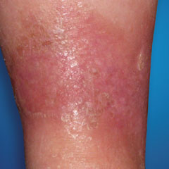 What Causes Skin Discoloration? Red Leg